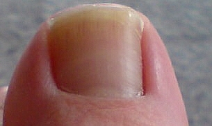 「ああ、これは靴に押された親指の皮膚が爪に食い込んでしまっていますね。陥入爪になりかかっていますよ。これは痛いよね・・・。」と私。