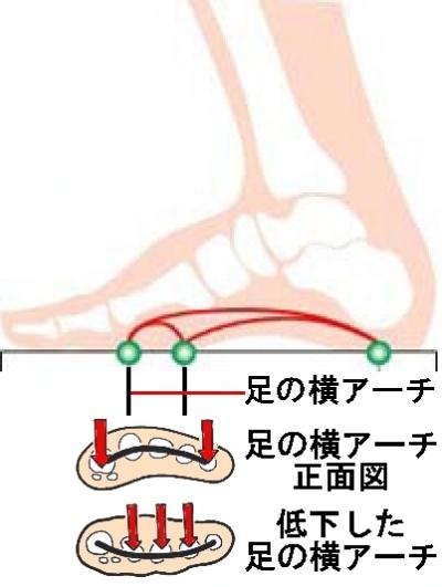 中足骨骨頭痛 中足骨骨頭痛と戦う―PART1
