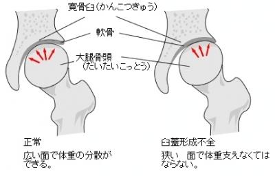 不全 蓋 形成 股関節 臼