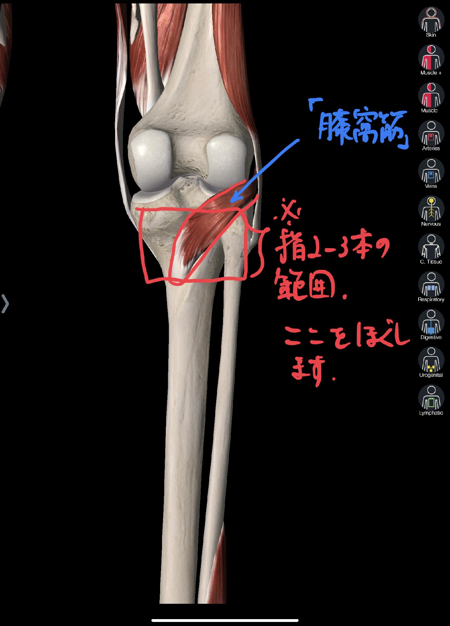 痛い 膝 原因 内側 が の