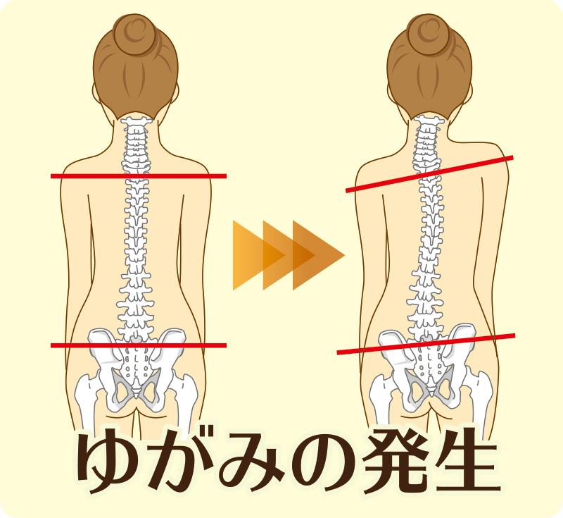 腰痛 内臓 から くる